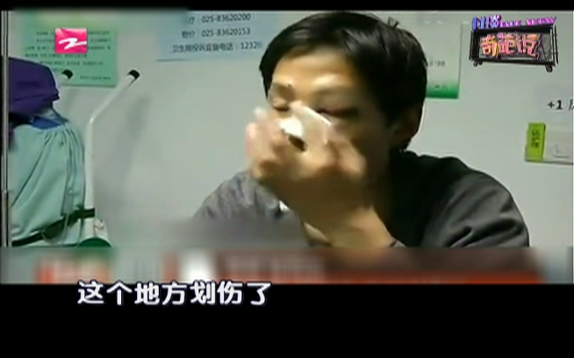 小伙子被口罩刺伤脸  缝200针